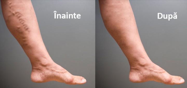 Ce exerciții nu se pot face cu varice ale picioarelor și care dintre ele vor fi utile?