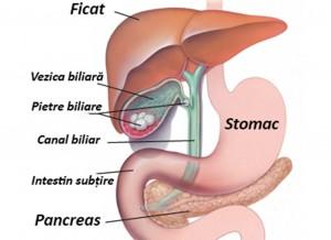 Remedii naturale pentru eliminarea pietrelor de la vezica biliară